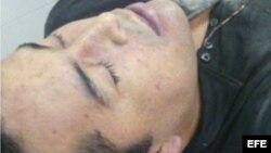 Fotografía cedida por la Marina Armada de México hoy, martes 9 de octubre de 2012, del cuerpo de quien se presume es el máximo líder del cartel de Los Zetas, Heriberto Lazcano Lazcano.