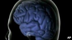 El estudio de los efectos de los medicamentos incluyó a personas de 65 años o más.