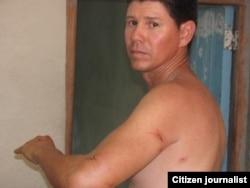 Reporta Cuba agresión a reportero Yoel Bencomo cuando cubría evento de Damas de Blanco en Santa CLara