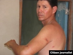 Reporta Cuba agresion reportero Yoel Bencomo