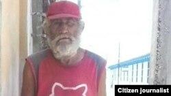 Reporta Cuba. Bernardo Ricardo García, desamparado, de Holguín. Foto: Anairis Miranda.