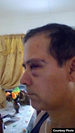 Alberto Corzo muestra las heridas sufridas.