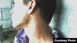 Marioldis Delgado Romero, activista de UNPACU golpeado por la policía en Palma Soriano.