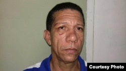 Activista de UNPACU describe golpiza recibida bajo custodia policial en Santiago de Cuba