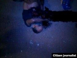 El estudiante Roberto Anesse, en un charco de sangre tras ser baleado por paramilitares en El Naranjal, Maracaibo