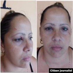 Dama de Blanco Maylén González reprimida Domingo 5 de junio