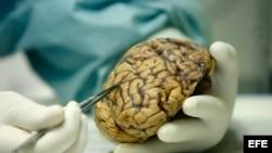 La donación de cerebros, tanto enfermos como sanos, es imprescindible para avanzar en la comprensión del Alzheimer.