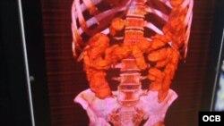 Radiografía muestra las cápsulas con estupefacientes en el organismo del viajero arrestado en La Habana.