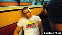 Siete jóvenes resultaron heridos y fueron trasladados de urgencia a un centro hospitalario (Foto: cortesía de Globovisión).