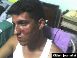 Ridel Brea agredido por militares Santiago de Cuba agosto 24