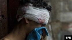 Vista de un joven herido en la cabeza tras ser agredido durante una acción policial en el barrio María Auxiliadora de Managua.