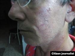 Reporta Cuba Lázaro Yuri Valle muestra las marcas de agresiones recibidas este 10 de diciembre Foto Enrique Díaz