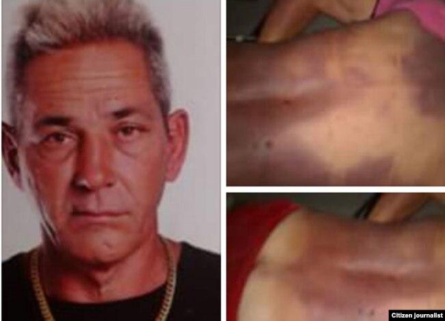 Alejandro Pupo Echemendía y fotos tomadas por sus familiares con las huellas del ataque sufrido en la celda.