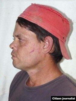 Reporta Cuba Leonel Freeman golpeado cuando acompañaba a su hermano que es activista de DDHH.