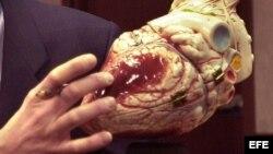 Fotografía de archivo del corazón de un joven quien sufrió un infarto. Foto Beaumont Hospital Press Room via EFE-UGI/cp
