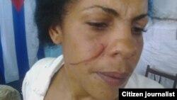 Yunaisy Carrasedo Milanés agredida domingo 24 por militares en Santiago de Cuba
