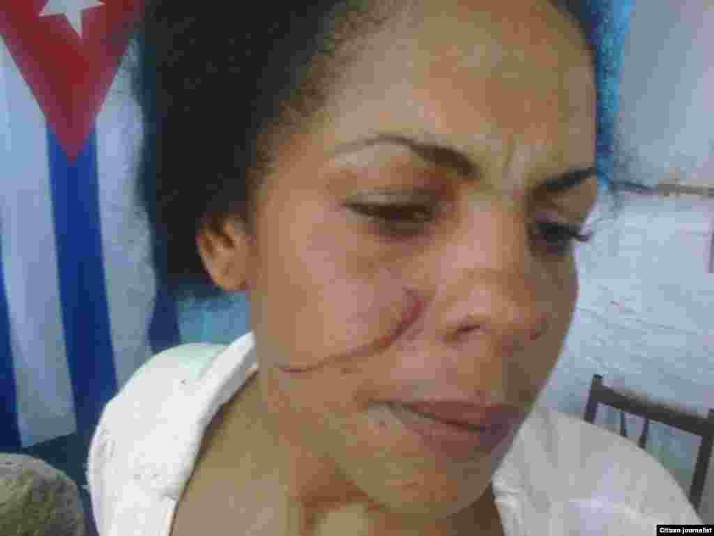 Yunaisi Carracedo, golpeada por la policía.