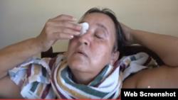 Falta de medicamentos para tratar la conjuntivitis hemorrágica golpea a los cubanos