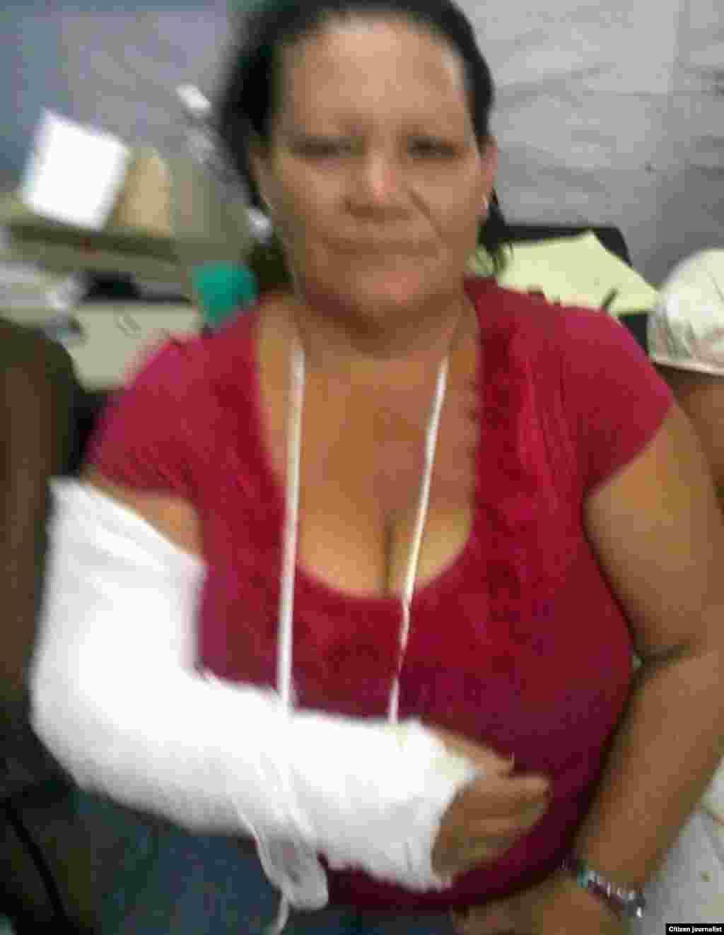 A la activista Graciela Dominguez le fracturaron un brazo.