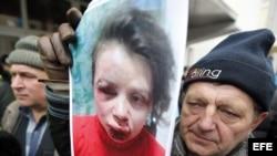 Imágen de la periodista Tatiana Chernobil tras ser agredida.