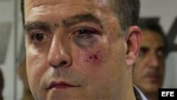 El diputado opositor Julio Borges, luego de ser golpeado por chavistas enel 30 de abril en la Asamblea Nacional.