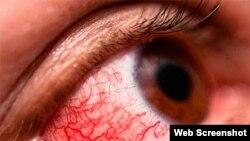 Conjuntivitis Hemorrágia Epidémica