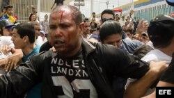 Fotografía del teniente de la GNB en condición de retiro Danny José Subero (34 años) luego de ser golpeado y baleado en una manifestación en el estado de Lara.