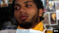 Estudiante venezolano suspenderá huelga de hambre