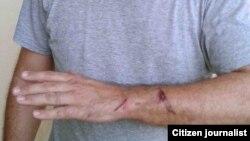 Antonio Rodiles: usaron las esposas como método de causar daño y dolor