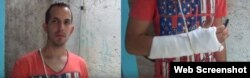 Reporta Cuba Ruben Darío le fracturaron un brazo