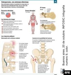 INFOGRAFIA : OSTEOPOROSIS , UNA AMENAZA SILENCIOSA