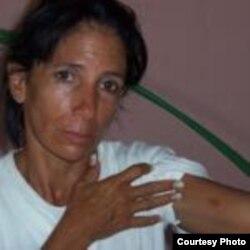 Dama de Blanco Leticia Herrería agredida en julio 21 Cárdenas