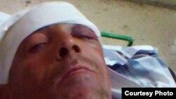 Angel López Sotolongo, agredido por desconocidos la noche del domingo 26 de marzo en La Habana. Foto Cortesía de Serafín Morán.