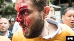 """Diputado del partido opositor Primero Justicia, Juan Requesens herido por presuntas personas armadas durante protesta por la """"restitución del orden constitucional"""" en el país."""
