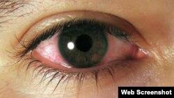Ojo de paciente afectado de conjuntivitis.