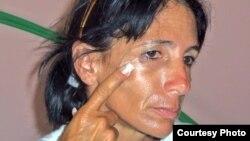 Leticia Ramos Herrería muestra golpes recibidos ayer 3 de noviembre.
