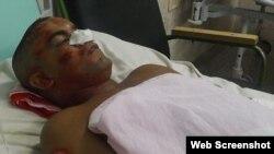 El trabajador Leonardo Rodríguez Santos permanece ingresado por traumatismo craneal.