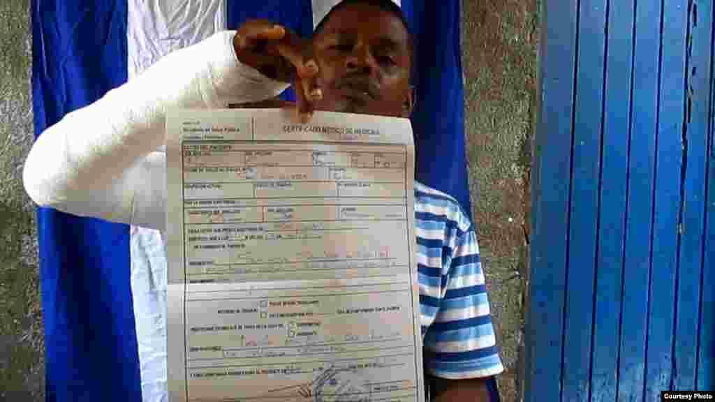Yoandris Beltrán Gamboa con el brazo enyesado y el certificado médico.