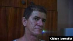 Testimonios de una joven enferma de dengue en Holguín y una historia de desahucio en La Habana